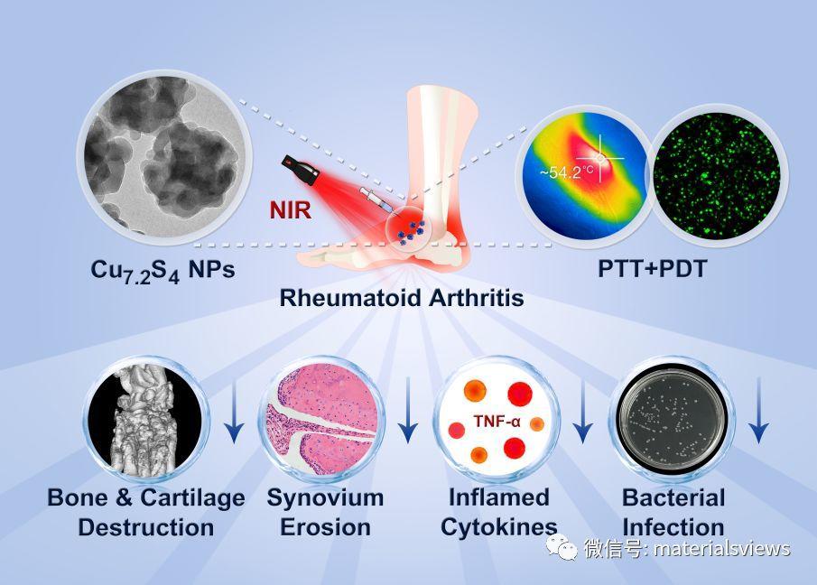 治疗类风湿关节炎的新方法:使用Cu7.2S4纳米粒子联合光热和光动力疗法